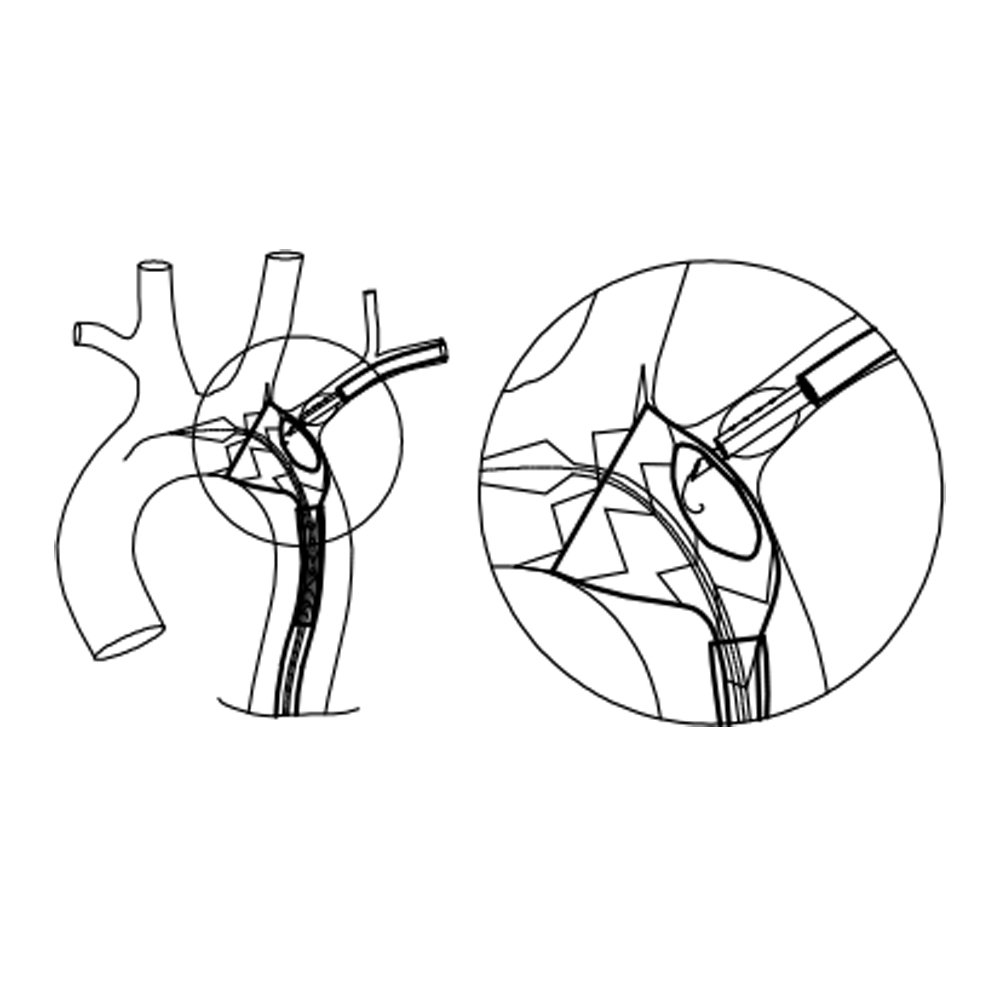 Ankura TAA Stent Graft System Fenestrierungssystem FuThrough